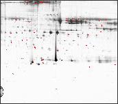 Plasma albumin depleted 2D Map